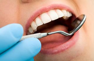 Dental Fillings in Duarte