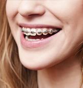 Special Dental Offer Duarte